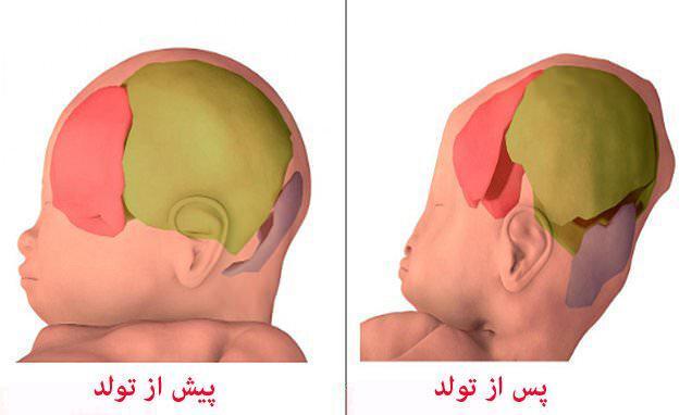 ثبت تصاویر سه بعدی از عبور نوزاد از کانال زایمانی