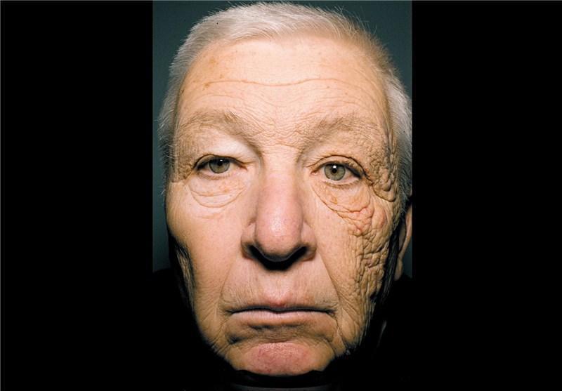 خطر سرطان پوست در اثر حرارت طولانی مدت