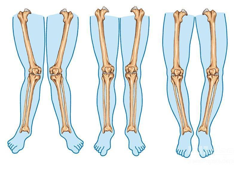 پای پرانتزی، علل و روش های درمان