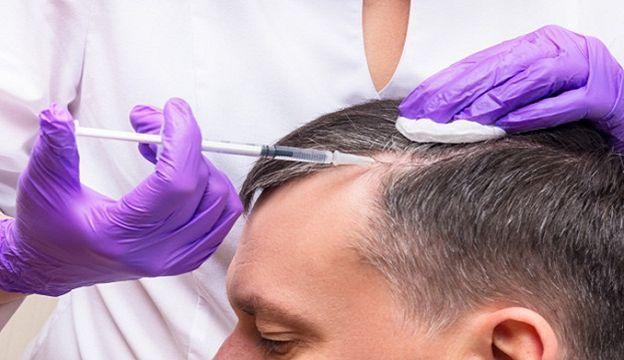 زیباییتان را به بهترین مرکز کاشت مو در گیلان بسپارید