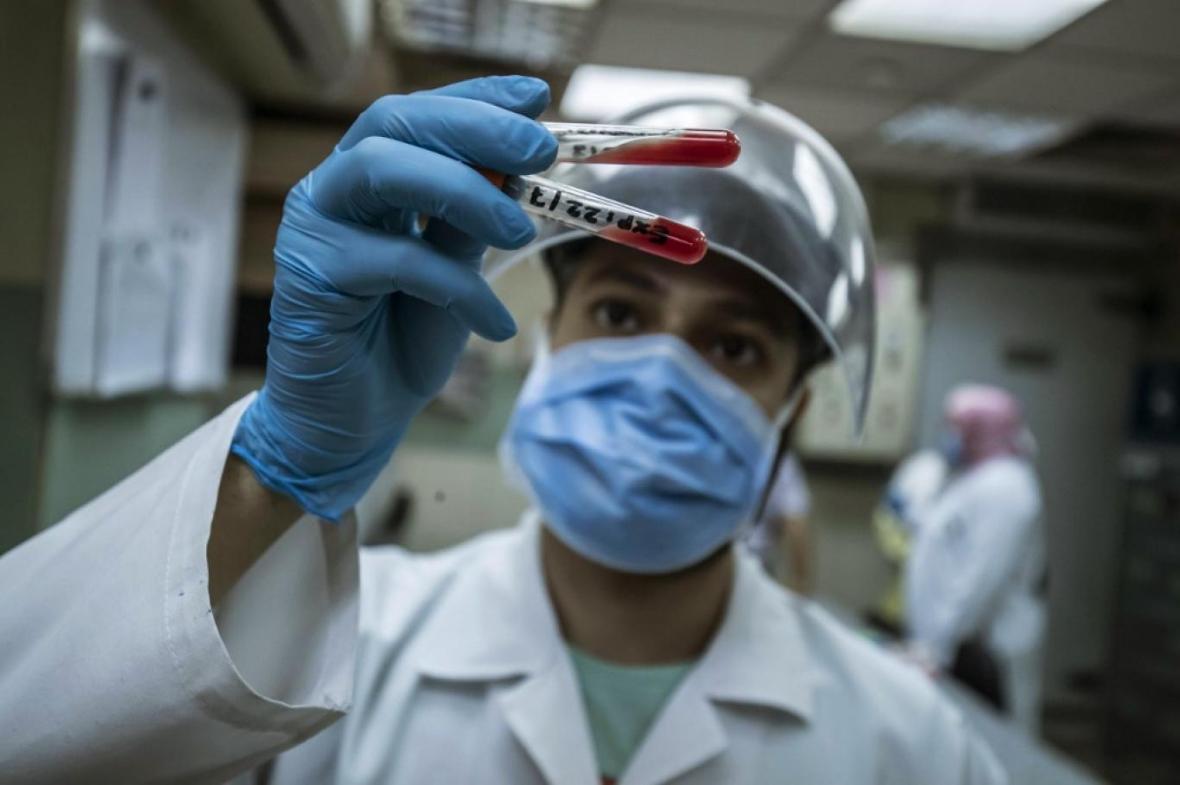 تشخیص سرطان سینه با روش جدید آزمایش خون
