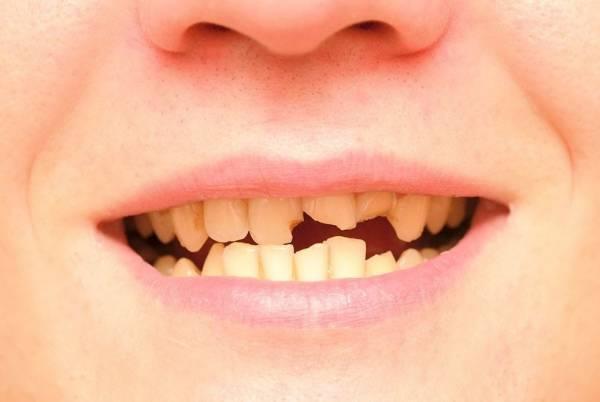 اثر باورنکردنی مسائل دندان روی فرم بدن